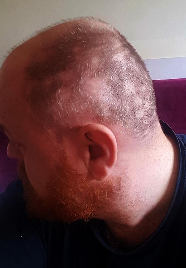 May Update - Hair Loss (1)