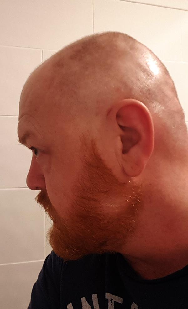 May Update - Hair Loss (2)